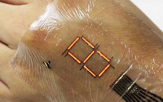 Изобретена электронная кожа, способная лечить людей