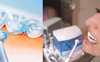 Польза и вред ирригатора: как использовать, чтобы не навредить себе